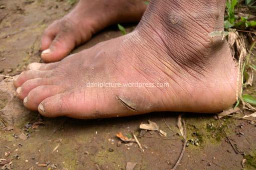 Warga Baduy Dalam masih belum menggunakan alas kaki sehingga tak jarang mereka mendapatkan luka kena pecahan beling yang dibuang begitu saja sama orang yang tidak bertanggung jawab.